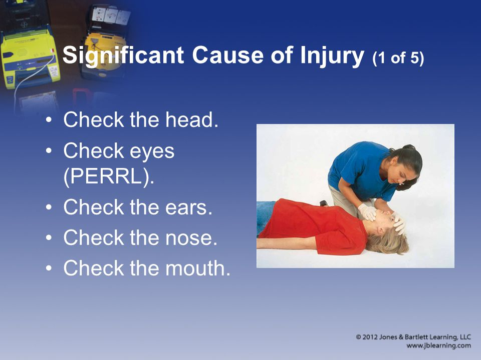 Significant Cause of Injury (1 of 5) Check the head.