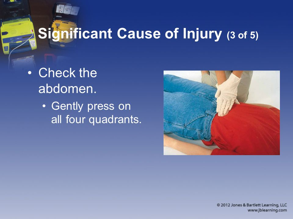 Significant Cause of Injury (3 of 5) Check the abdomen. Gently press on all four quadrants.