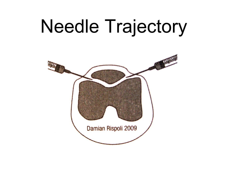 Needle Trajectory