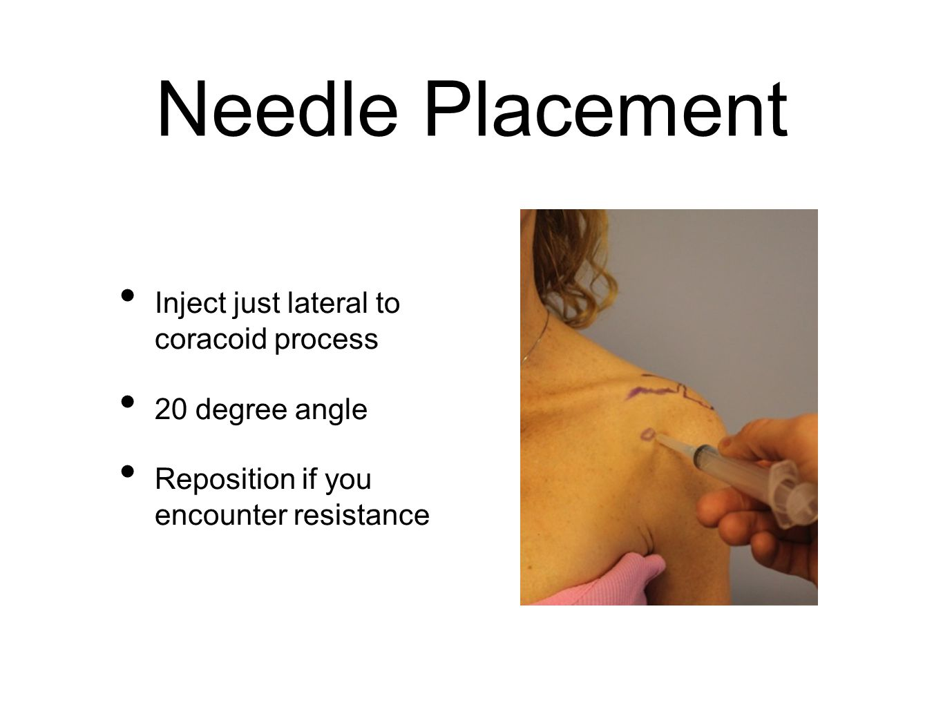 Needle Placement Inject just lateral to coracoid process 20 degree angle Reposition if you encounter resistance