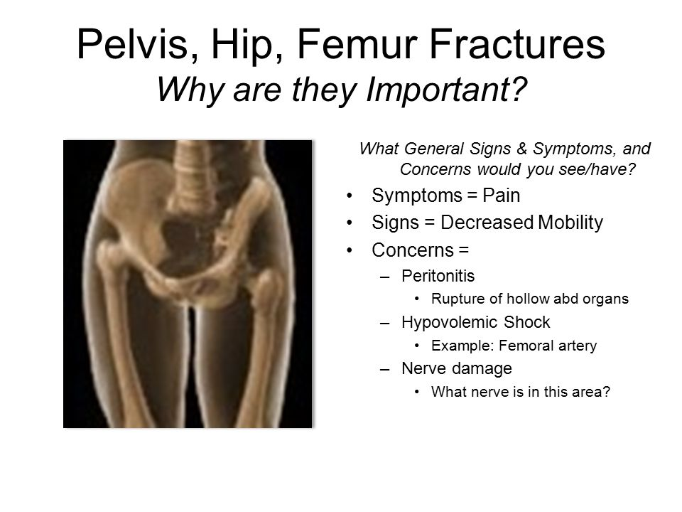 Pelvis, Hip, Femur Fractures Why are they Important? What General Signs & Symptoms, and Concerns would you see/have? Symptoms = Pain Signs = Decreased