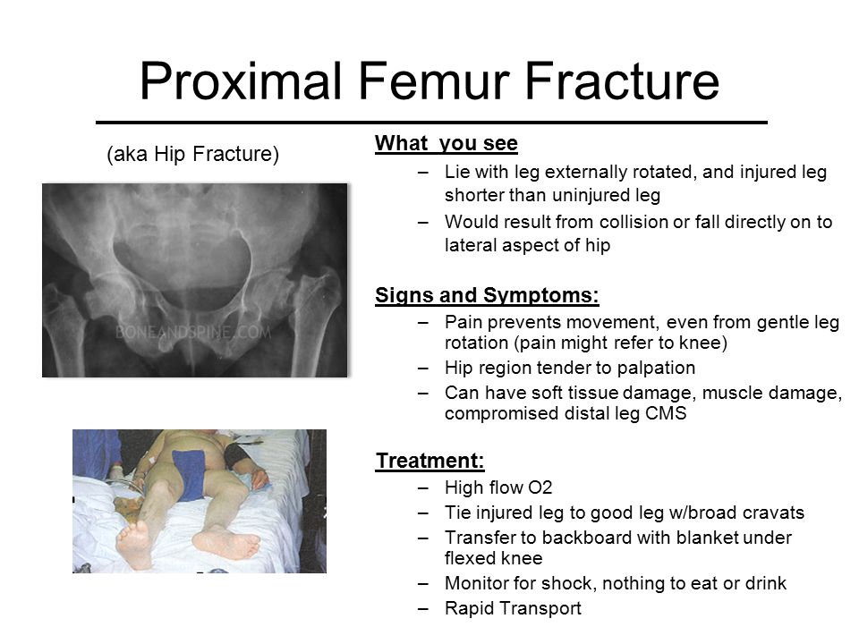 Mid Shaft Femur Fracture What you see –Externally rotated and shortened limb with tender bulge in middle of thigh –Fracture is often angulated (limb deformity) –MOI is direct blow or violent external rotation Signs and Symptoms: –Patient in severe pain, has thigh muscle spasms, unable to move extremity –Pain on palpation is immediate Treatment: –High flow O2 –If angulation, must realign before splinting –Apply Traction Splint such as the Sager –Transfer to Backboard –Monitor for shock, nothing to eat or drink –Rapid Transport