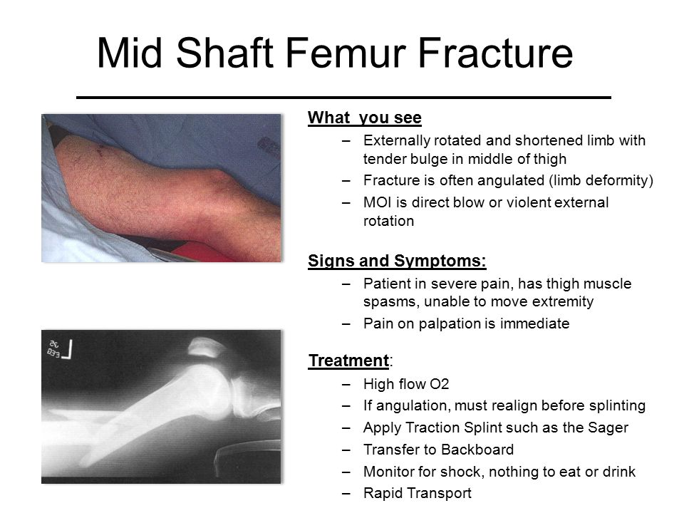 Mid Shaft Femur Fracture What you see –Externally rotated and shortened limb with tender bulge in middle of thigh –Fracture is often angulated (limb d