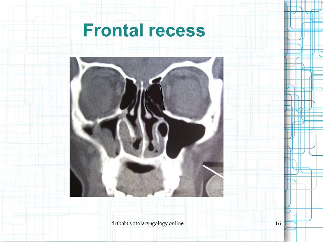 drtbalu s otolaryngology online16 Frontal recess