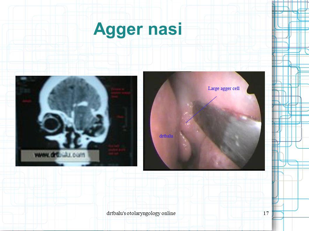 drtbalu s otolaryngology online17 Agger nasi