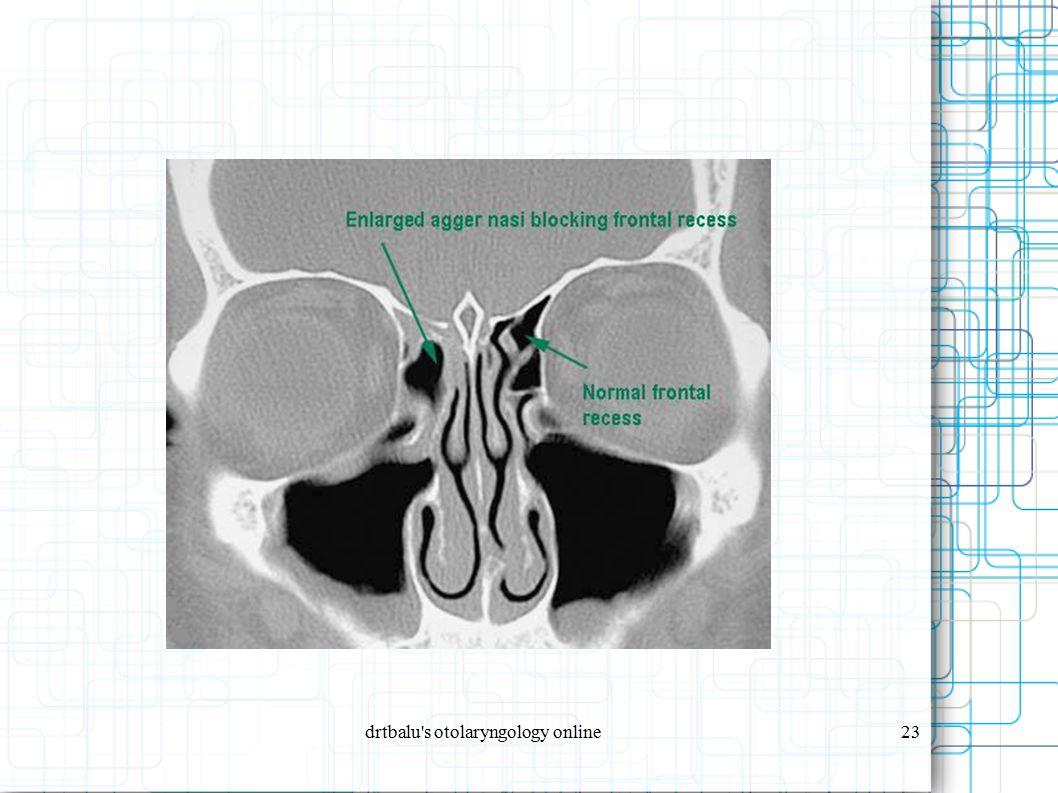 drtbalu s otolaryngology online23