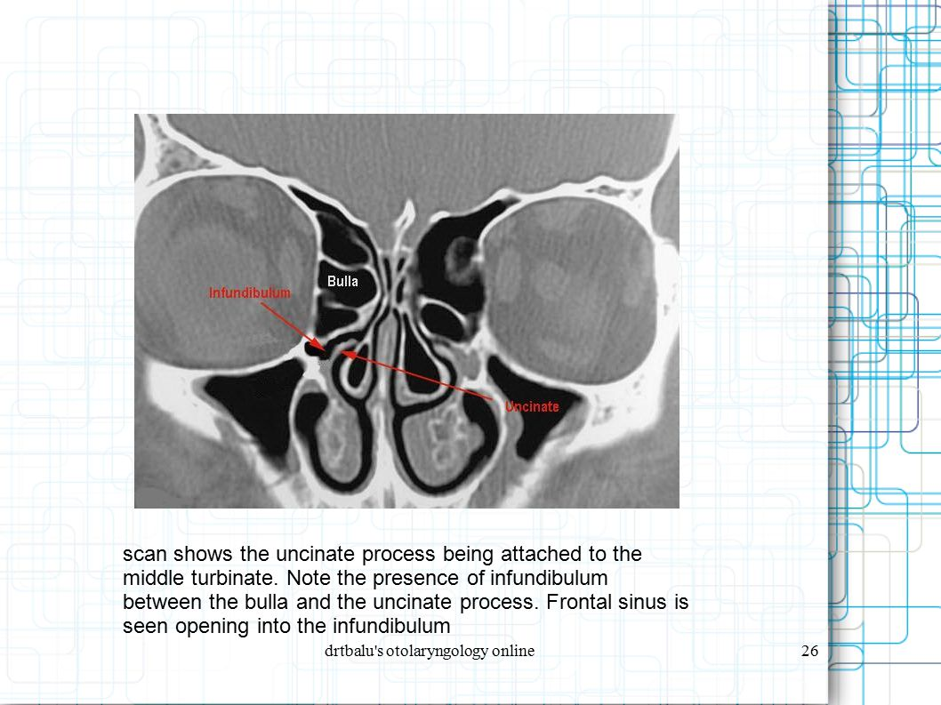 drtbalu's otolaryngology online26 scan shows the uncinate process being attached to the middle turbinate. Note the presence of infundibulum between th