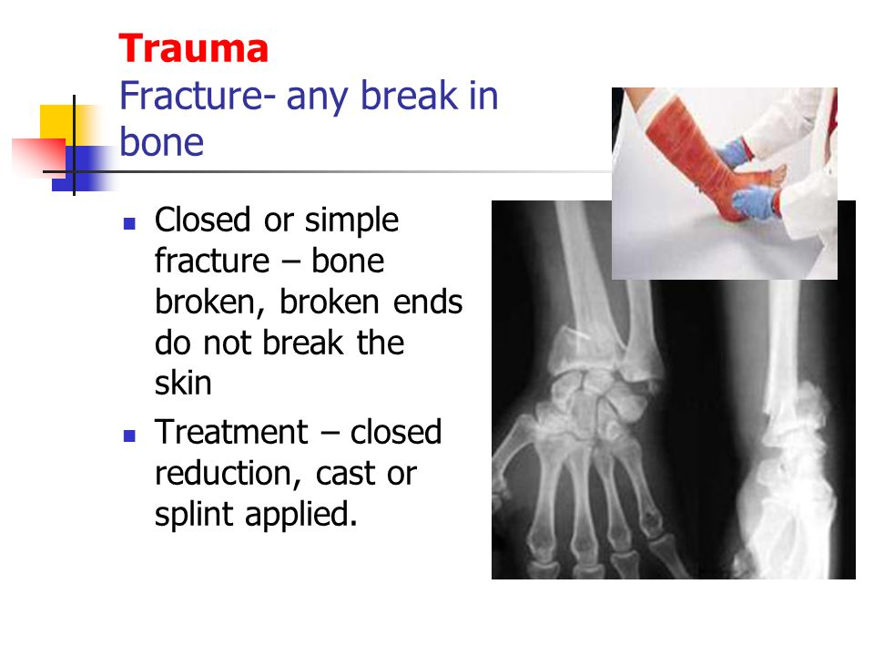 Trauma Fracture- any break in bone Closed or simple fracture – bone broken, broken ends do not break the skin Treatment – closed reduction, cast or sp