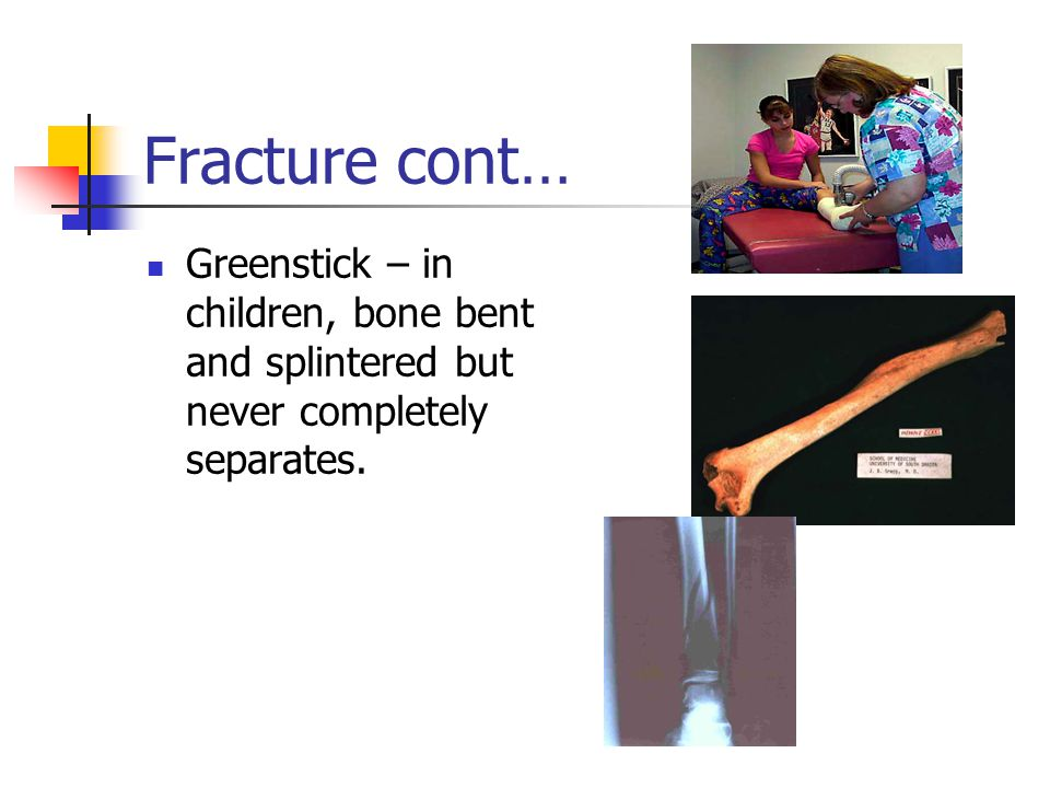 Fracture cont… Greenstick – in children, bone bent and splintered but never completely separates.