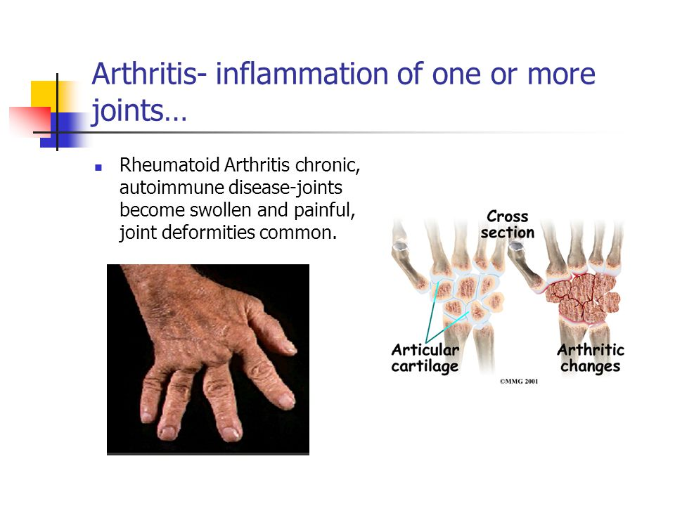 Arthritis- inflammation of one or more joints… Rheumatoid Arthritis chronic, autoimmune disease-joints become swollen and painful, joint deformities common.