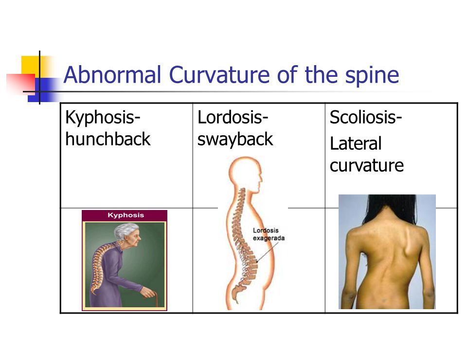 Abnormal Curvature of the spine Kyphosis- hunchback Lordosis- swayback Scoliosis- Lateral curvature