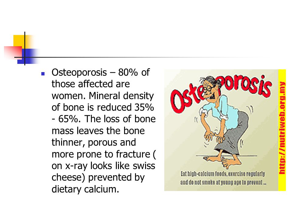 Osteoporosis – 80% of those affected are women. Mineral density of bone is reduced 35% - 65%.