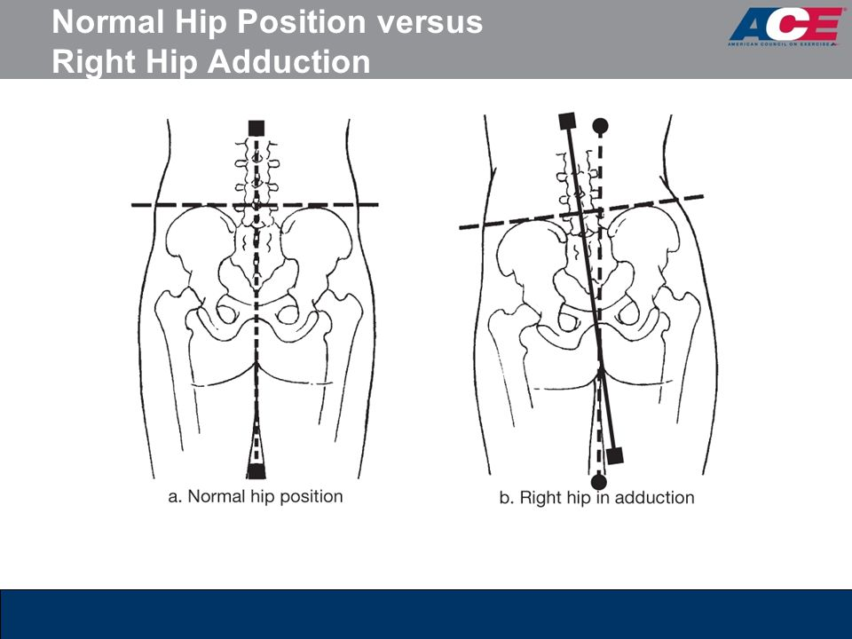 Normal Hip Position versus Right Hip Adduction