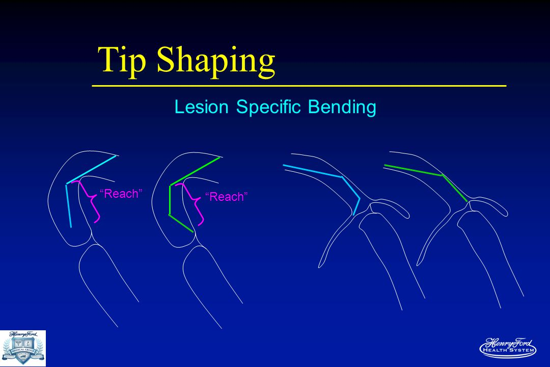 Tip Shaping Lesion Specific Bending Reach