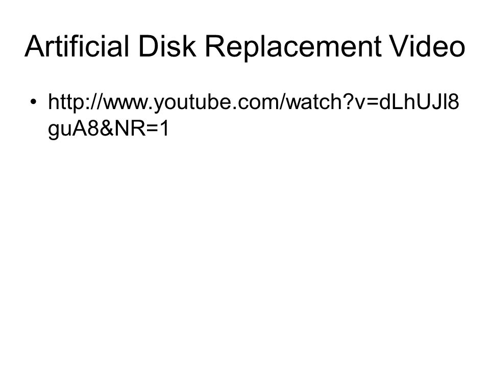 Artificial Disk Replacement Video http://www.youtube.com/watch?v=dLhUJl8 guA8&NR=1