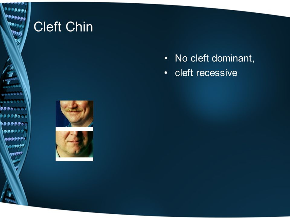 Cleft Chin No cleft dominant, cleft recessive