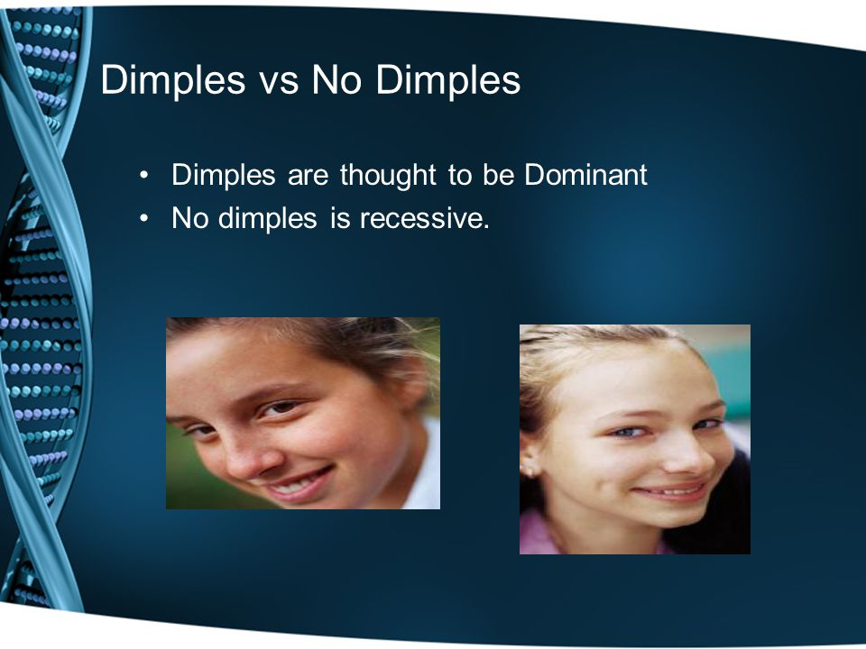 Dimples vs No Dimples Dimples are thought to be Dominant No dimples is recessive.
