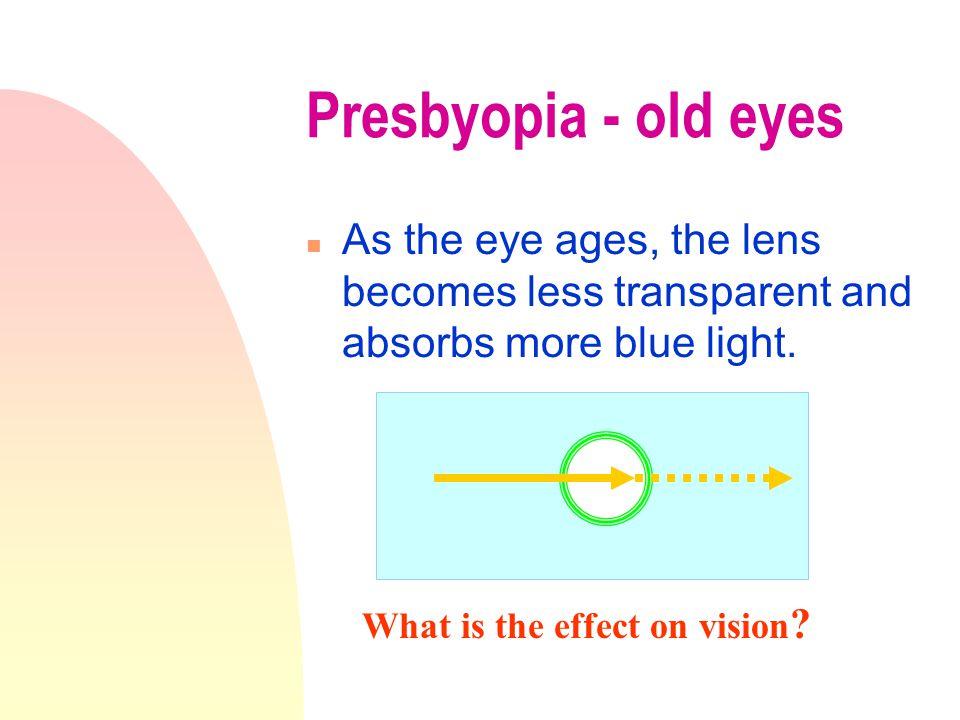 Hyperopia & Myopia
