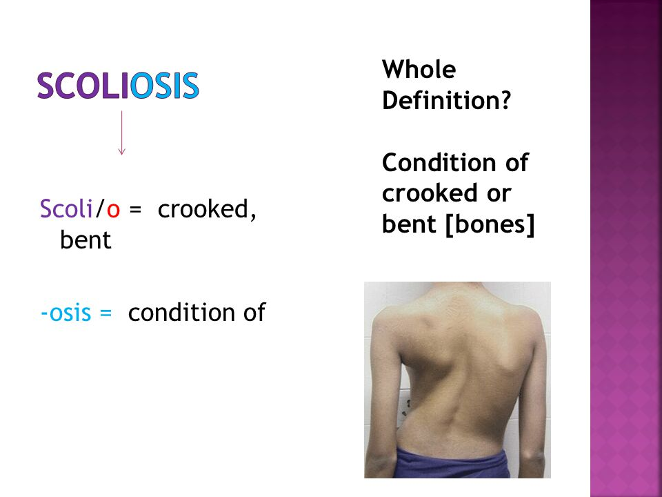 Scoli/o = crooked, bent -osis = condition of Whole Definition? Condition of crooked or bent [bones]
