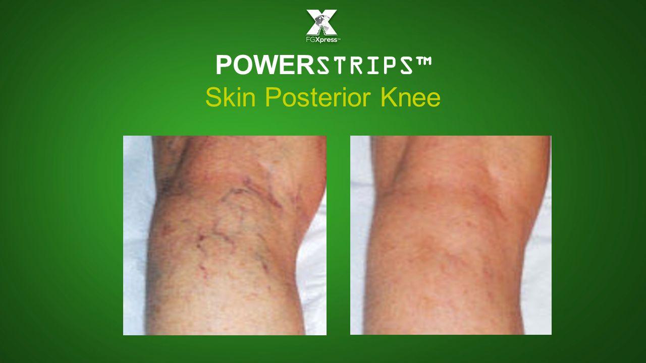 POWERSTRIPS™ Skin Posterior Knee