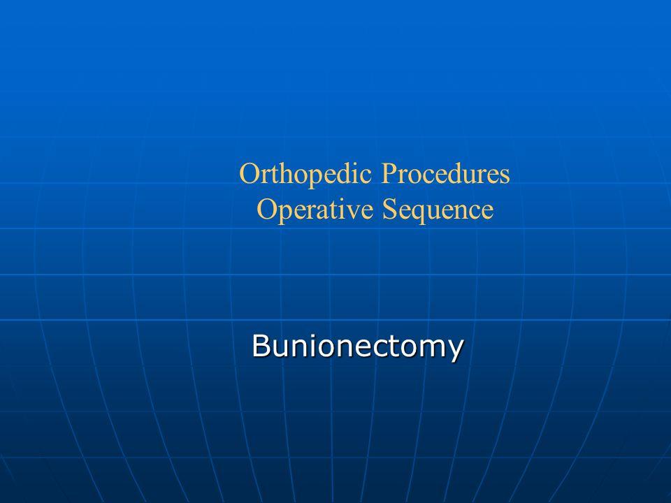 Bunionectomy Orthopedic Procedures Operative Sequence