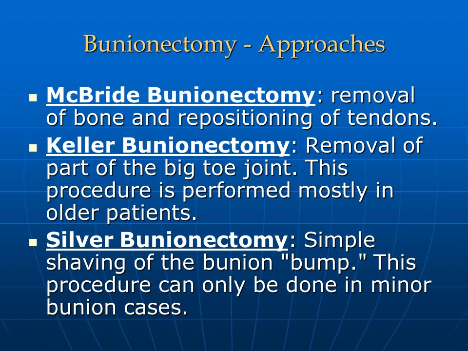 Bunionectomy - Approaches : removal of bone and repositioning of tendons. McBride Bunionectomy: removal of bone and repositioning of tendons. : Remova