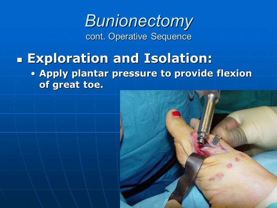 Bunionectomy cont. Operative Sequence Exploration and Isolation: Exploration and Isolation: Apply plantar pressure to provide flexion of great toe.App