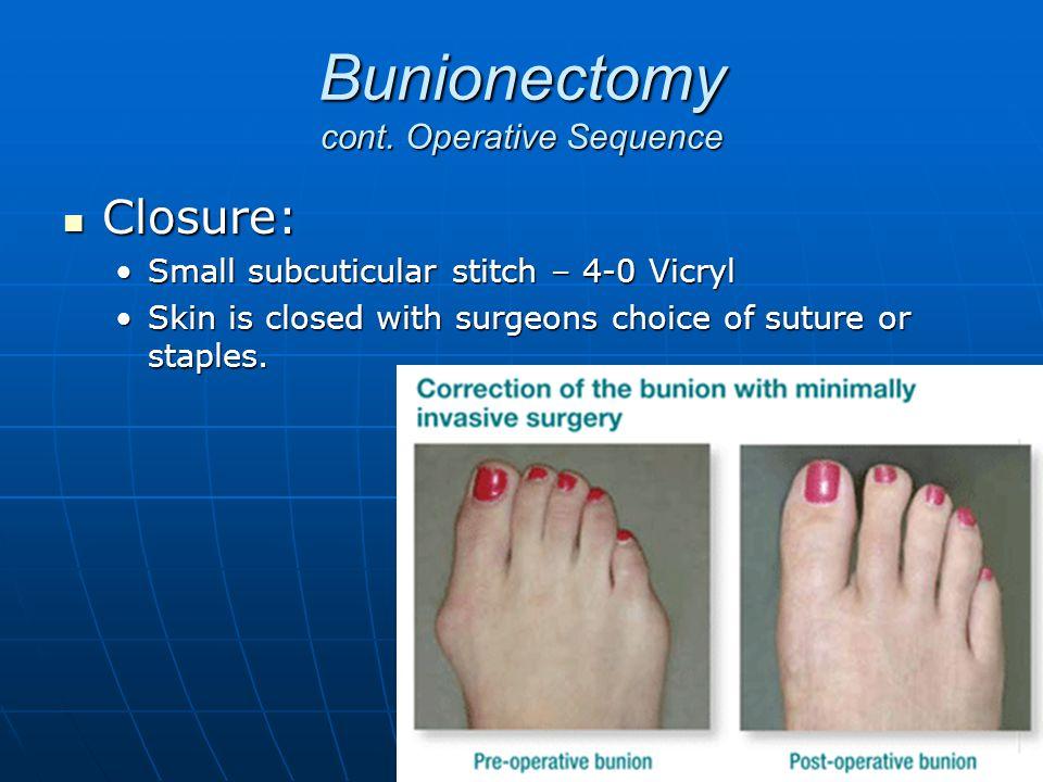 Bunionectomy cont. Operative Sequence Closure: Closure: Small subcuticular stitch – 4-0 VicrylSmall subcuticular stitch – 4-0 Vicryl Skin is closed wi