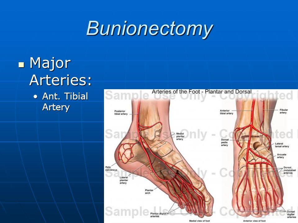 Bunionectomy Major Arteries: Major Arteries: Ant. Tibial ArteryAnt. Tibial Artery