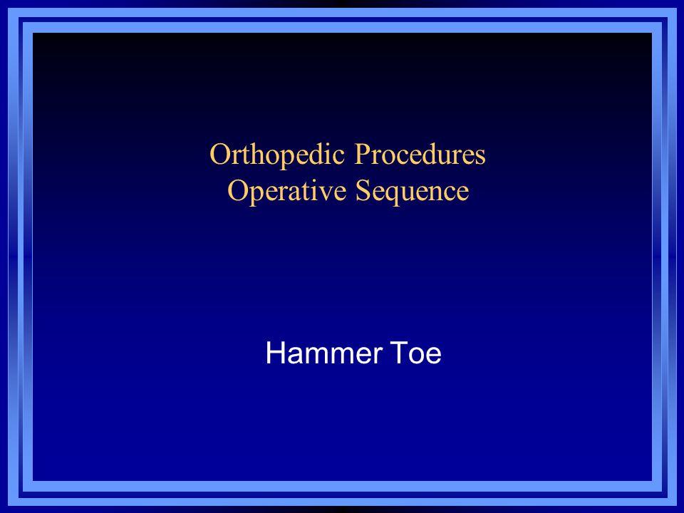 Hammer Toe Orthopedic Procedures Operative Sequence