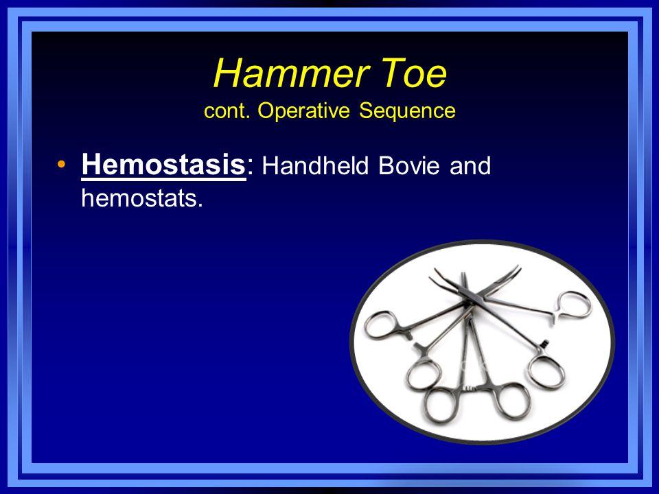 Hammer Toe cont. Operative Sequence Hemostasis: Handheld Bovie and hemostats.