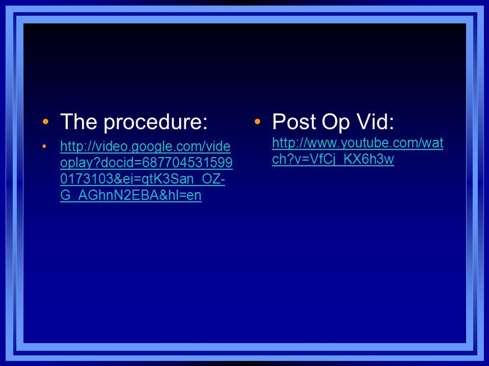The procedure: http://video.google.com/vide oplay?docid=687704531599 0173103&ei=qtK3San_OZ- G_AGhnN2EBA&hl=enhttp://video.google.com/vide oplay?docid=