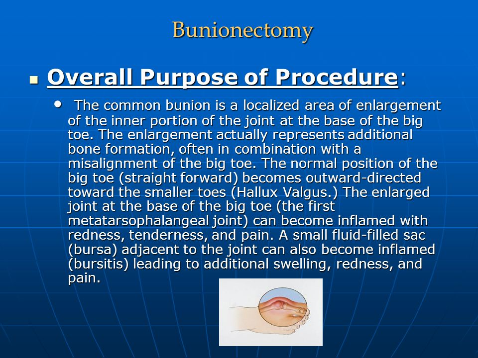 Bunionectomy Bunionectomy Overall Purpose of Procedure: Overall Purpose of Procedure: The common bunion is a localized area of enlargement of the inne