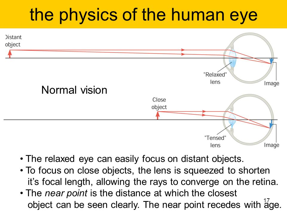 the physics of the human eye The relaxed eye can easily focus on distant objects. To focus on close objects, the lens is squeezed to shorten it's foca