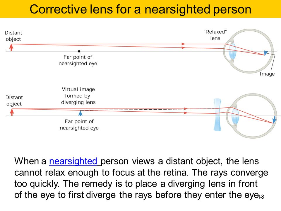 When a nearsighted person views a distant object, the lens cannot relax enough to focus at the retina. The rays converge too quickly. The remedy is to