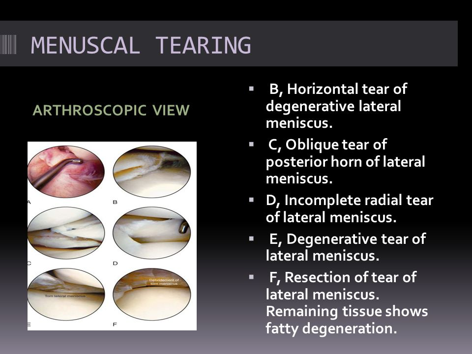 MENUSCAL TEARING ARTHROSCOPIC VIEW  B, Horizontal tear of degenerative lateral meniscus.