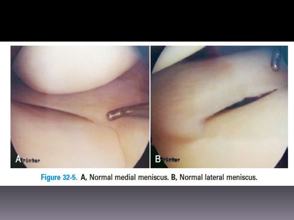 The lateral meniscus is smaller and more mobile than the medial meniscus.