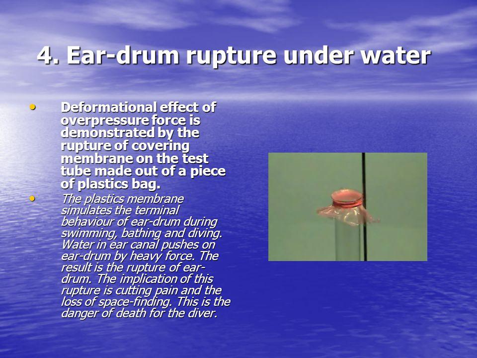 4. Ear-drum rupture under water 4.