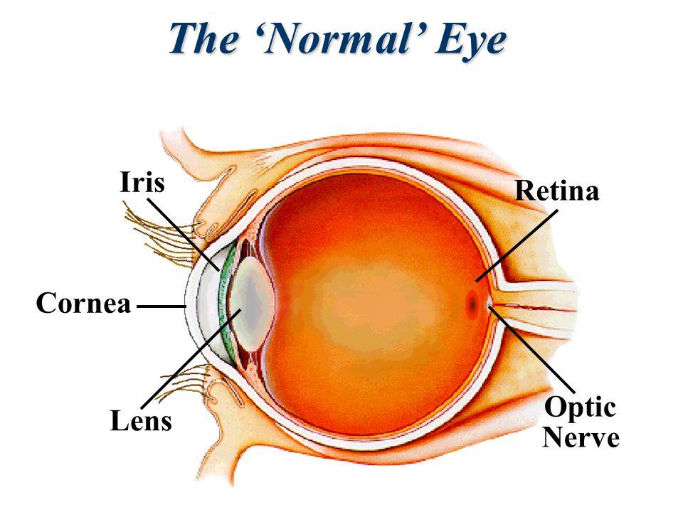 Lens Cornea Iris Optic Nerve Retina The 'Normal' Eye