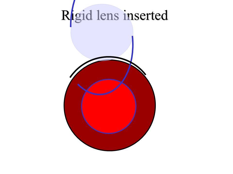 Rigid lens inserted