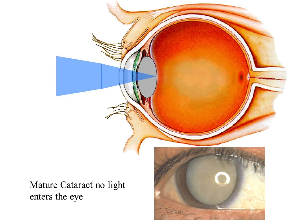 Mature Cataract no light enters the eye