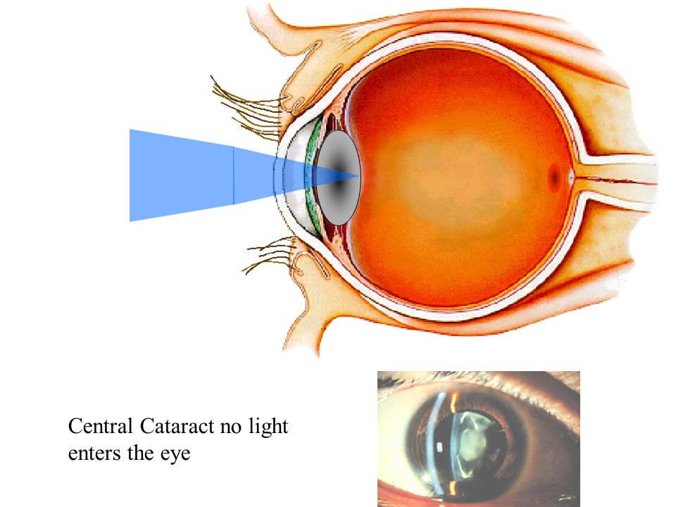 Central Cataract no light enters the eye