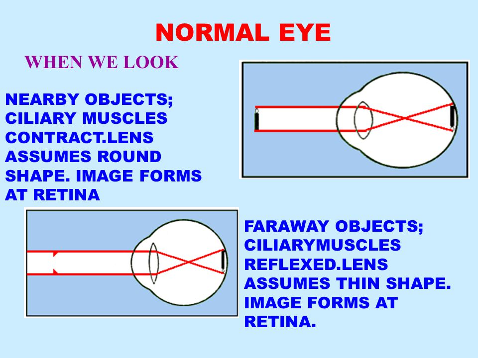 NORMAL EYE WHEN WE LOOK NEARBY OBJECTS; CILIARY MUSCLES CONTRACT.LENS ASSUMES ROUND SHAPE.