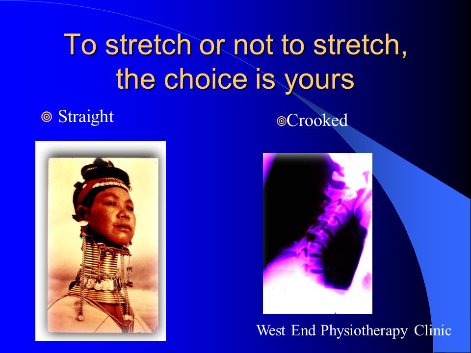 To stretch or not to stretch, the choice is yours  Straight West End Physiotherapy Clinic  Crooked