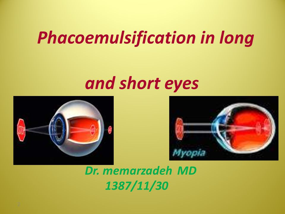 Phacoemulsification in long and short eyes Dr. memarzadeh MD 1387/11/30 1387-11-30 Dr memarzadeh MD ophthalmologist 2