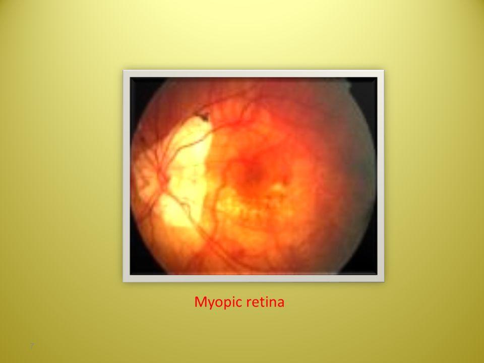 Myopic retina 7