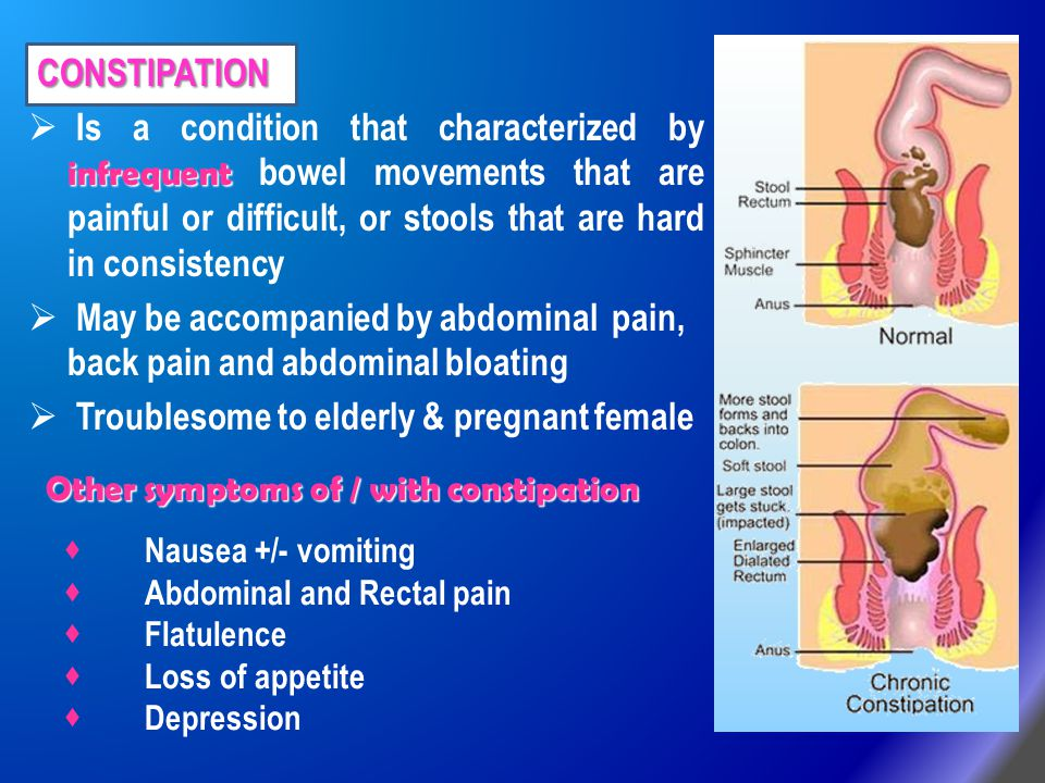 CONSTIPATION CONSTIPATION infrequent  Is a condition that characterized by infrequent bowel movements that are painful or difficult, or stools that a