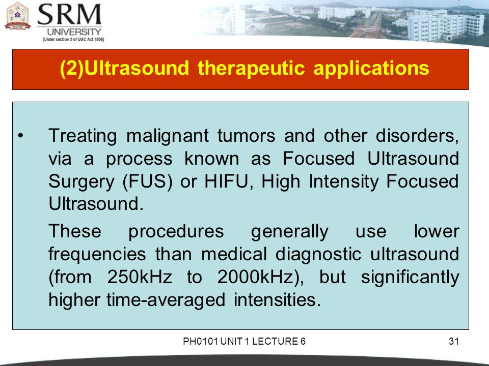 PH0101 UNIT 1 LECTURE 631 (2)Ultrasound therapeutic applications Treating malignant tumors and other disorders, via a process known as Focused Ultraso