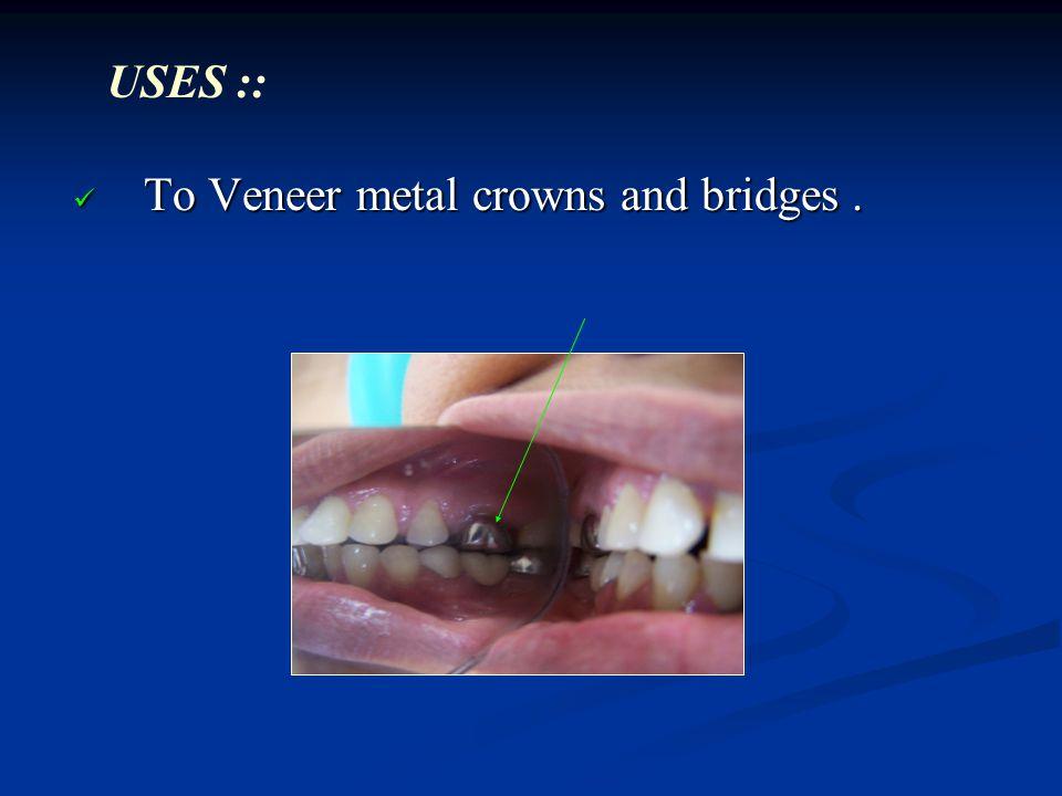 To Veneer metal crowns and bridges. To Veneer metal crowns and bridges. USES ::