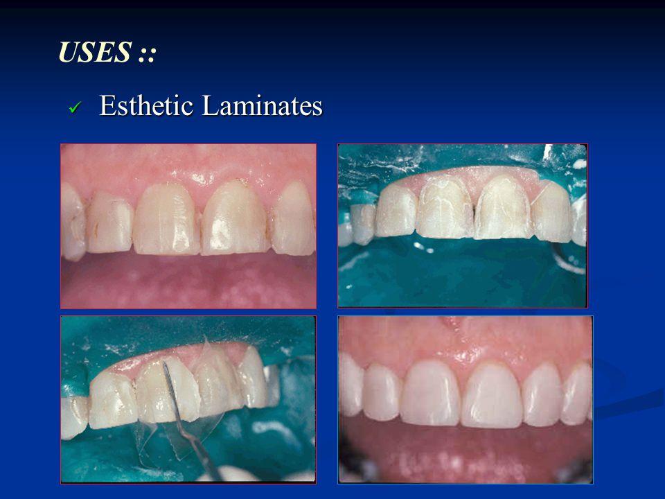 Esthetic Laminates Esthetic Laminates USES ::